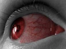 Программы для сохранения зрения при работе за компьютером